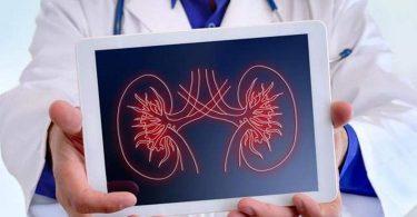 سنگ کلیه؛ علائم، دلایل ایجاد، درمان و روشهای پیشگیری