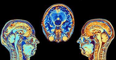 تصویربرداری از مغزتصویربرداری های جدید نشان میدهد چاقی خطر ابتلا به آلزایمر را افزایش میدهد
