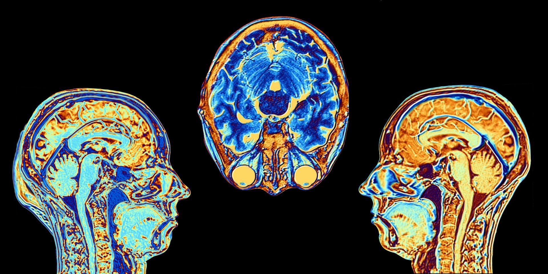 تصویر از تصویربرداری های جدید  نشان میدهد چاقی خطر ابتلا به آلزایمر را افزایش میدهد