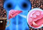 نوشیدن قهوه مرگ و میر ناشی از سرطان کبد را کاهش میدهد