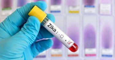 عفونت-اختلالات مادرزادی-خطر انتقال ویروس زیکا از مادر به کودک متولد نشده بسیار بیشتر از حد انتظار است