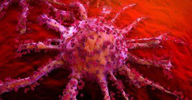 از بین بردن سرطان و سلول های سرطانی با تزریق نانوذرات طلا در داخل تومور ها