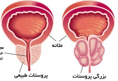 تشخیص سرطان پروستات با استفاده از نمونه برداری از پروستات