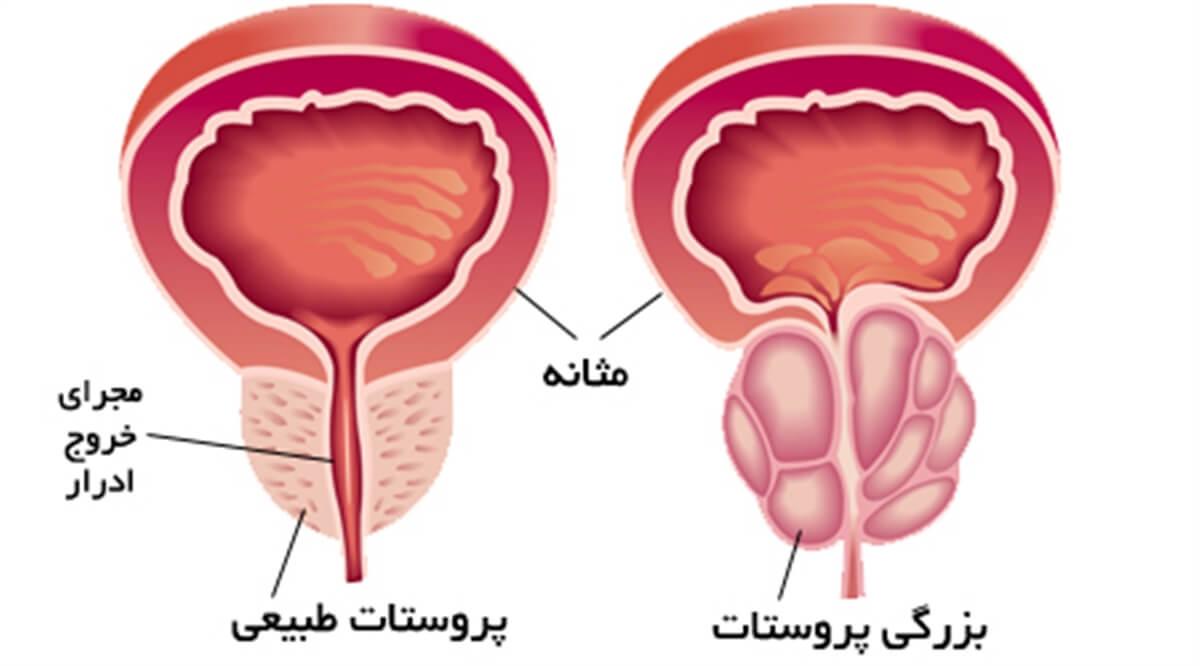 تصویر از تشخیص سرطان پروستات با استفاده از نمونه برداری از پروستات