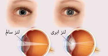 بینایی-چشم-چه تفاوتی بین گلوکوم (آب سیاه) و آب مروارید وجود دارد؟