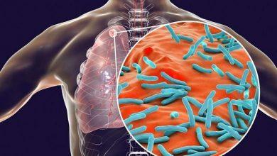 با بیماری عفونی سل، علائم، تشخیص و درمان آن آشنا شوید