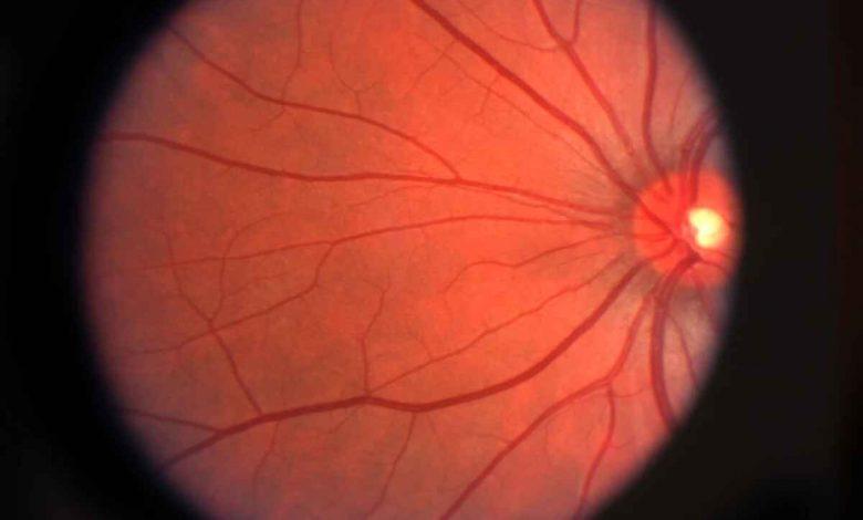 شبکیه مصنوعی بیوهیبرید با هدف بازگرداندن بینایی به وسیله سلولهای زنده بیماری دژنراسیون ماکولا یا AMD
