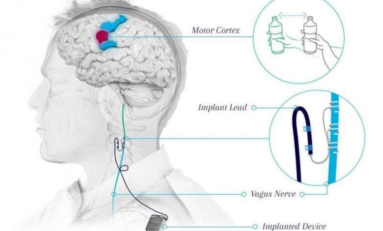 روش جراحی جدید برای بهبود اختلالات عملکرد دست و بازو پس از سکته مغزی بیماران آزمایش بالینی